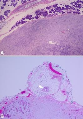Capsule in pleomorphic adenoma. (A) Image shows pl
