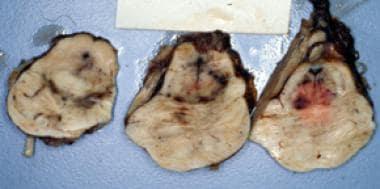 Brainstem sections showing streak hemorrhages in t