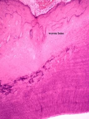 Micrograph of woven bone. Note lack of organizatio