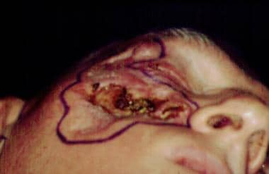 Basal cell carcinoma of the skin. Intraoperative v