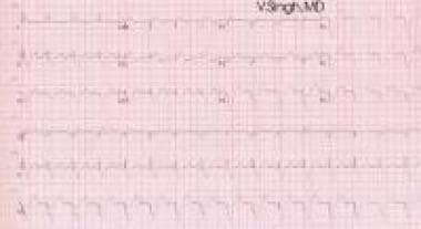 ECG shows biventricular pacing (double ventricular