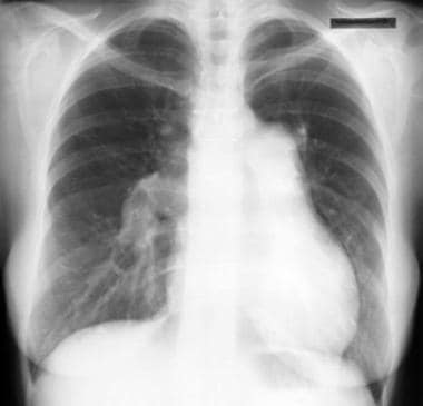 Chest radiograph in a patient with pulmonary hyper