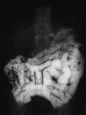Sprue. Radiograph from a small-bowel series in a p