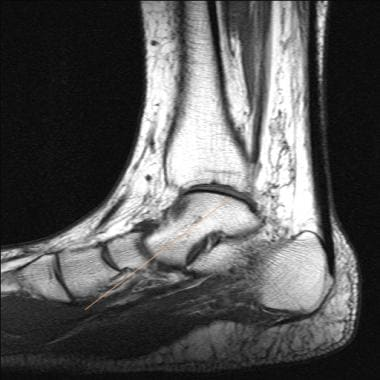 Ankle, tibialis posterior tendon injuries. Sagitta