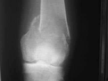Anteroposterior radiograph of the knee shows a pat