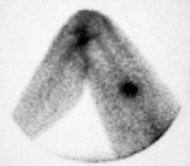 Gallium-67 scintigram reveals increased radiotrace