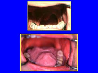 Total glossectomy with an artificial tongue for sp