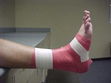 Ankle taping and bracing. Anchor strips. Note the