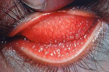 This image reveals a close view of a patient's lef