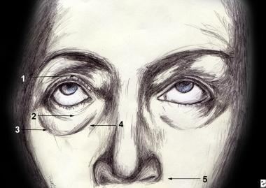 Topographic anatomy of the eyelid. 1.Superior tars