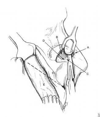 Surgical aspects of septal perforation. Incision u