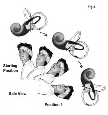 The patient is placed in a sitting position with t