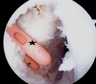 The catheters have premade holes, which are used f