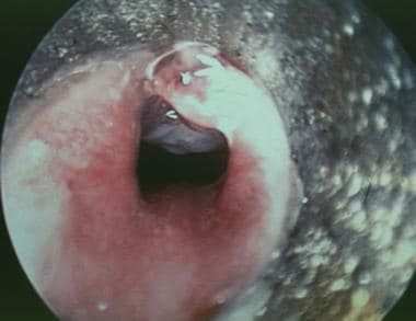 Intraoperative suspended view through a subglottos
