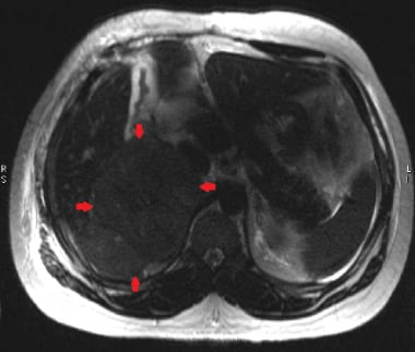 This axial T2W HASTE image demonstrates a large ri