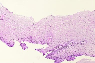 Normal histology of the esophagus.