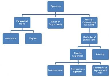 Options for cystocele repair.