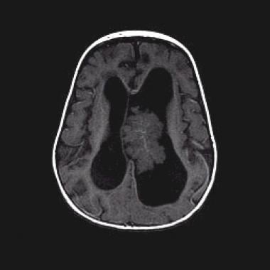 Axial T1-weighted nonenhanced magnetic resonance i