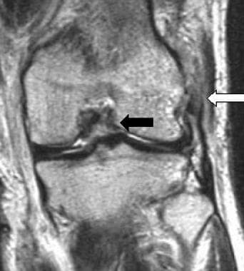 The lateral collateral ligament is lax and its fib