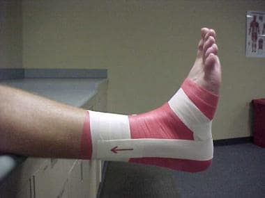 Ankle taping and bracing. First stirrup. Note the
