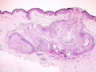 Proliferating trichilemmal cystic neoplasm. Well-c