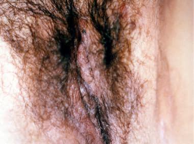 Vulvar hidradenitis suppurativa.