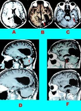 Case 3: Tentorial meningioma. Gadolinium-enhanced