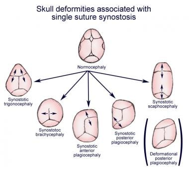 Skull deformities associated with single suture sy