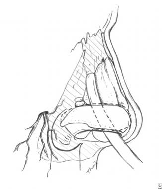 Surgical aspects of septal perforation. Areas of d