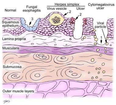 Location of fungal and viral infections in ulcers.