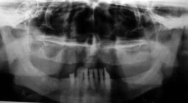 Radiographically evident severe alveolar bone loss