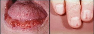 Hereditary hemorrhagic telangiectasia. Photographs