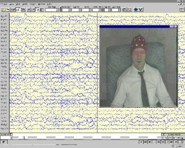 A display of a typical video-EEG monitoring machin