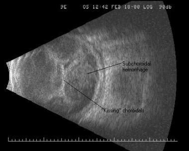 """Kissing"" hemorrhagic choroidal detachments. The t"