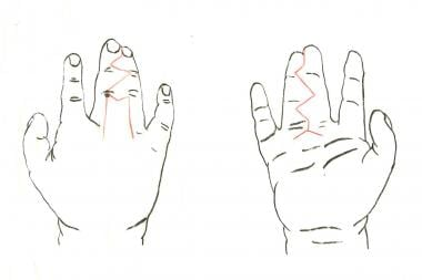 Complete simple syndactyly of middle and ring fing