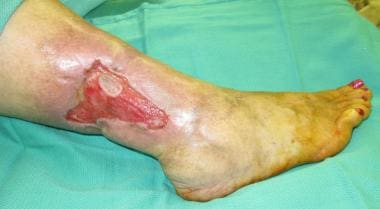Nonhealing lower extremity wound.