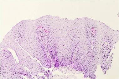 Histology from a patient with reflux esophagitis.