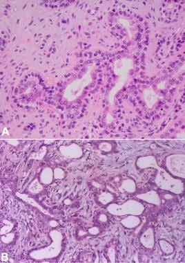 Cells in pleomorphic adenoma. (A) Tubule/duct form
