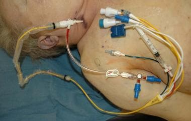 A photograph of a Swan-Ganz catheter at autopsy. T