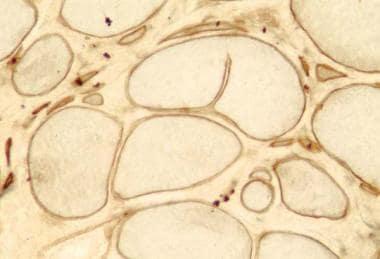 Dystrophinopathy, Becker muscular dystrophy, dystr