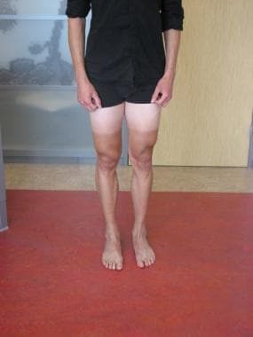 Assessing the Q angle for patellar instability.