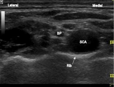 The brachial plexus (BP) and subclavian artery (SC