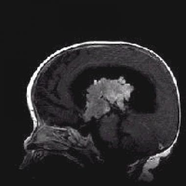 Sagittal T1-weighted contrast-enhanced magnetic re