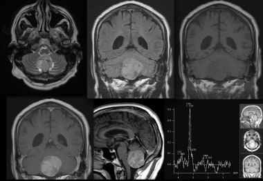 MRI images with the following sequences: axial T2,
