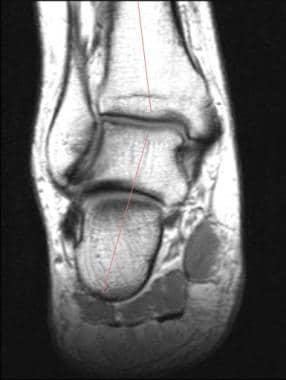 Ankle, tibialis posterior tendon injuries. Coronal
