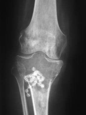 Anteroposterior radiograph shows a septate lytic l