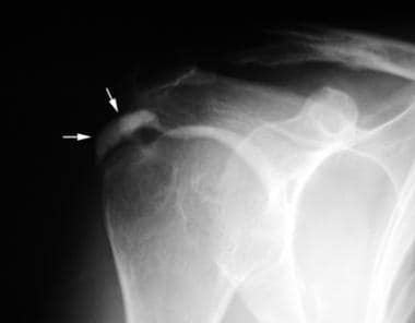 Anteroposterior radiograph performed in external r