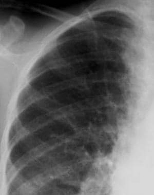 Thalassemia. Radiograph of the ribs. Erosions of t