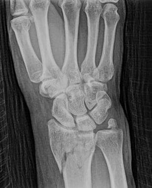 Distal Radial Fracture Imaging Overview Radiography