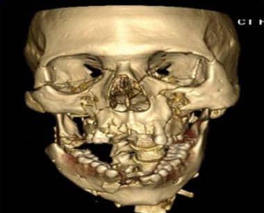 Panfacial fracture. Courtesy of Arthur K. Adamo, D